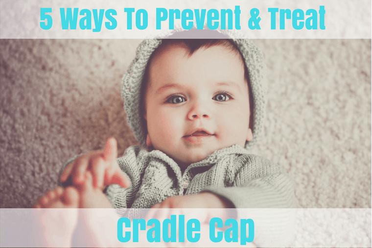 How to treat cradle cap