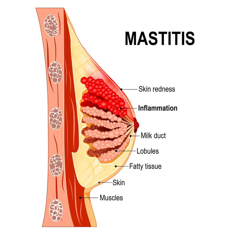 Mastitis in the breast