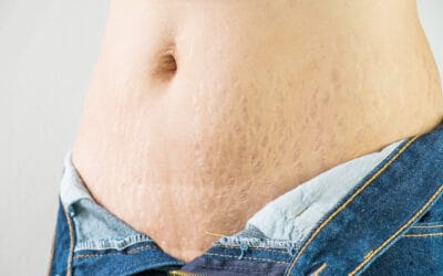 Stretch Marks And The Causes Of It